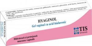 Sonda vaginala