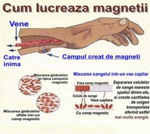 Centura cu magneti lombara