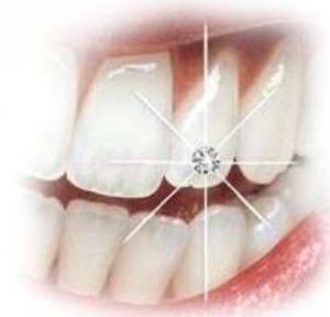 Bijuterii dentare - tatuaje
